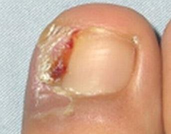爪を短く切ってしまうと、巻き爪は悪化してしまう!?